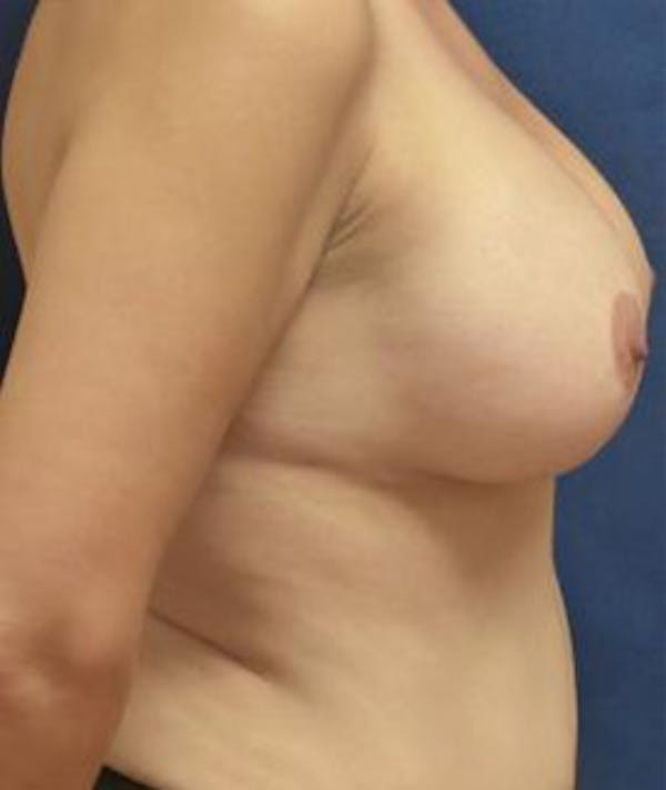 Breast Augmentation Gallery - Patient 4861023 - Image 4