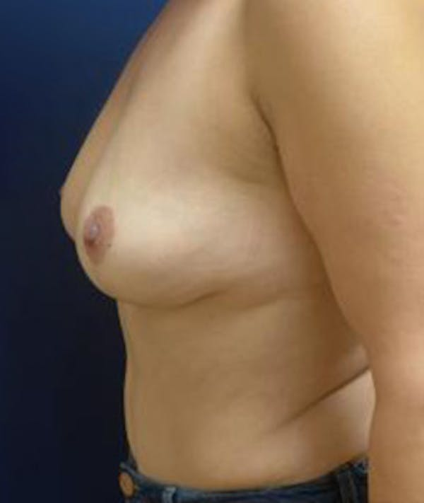 Breast Augmentation Gallery - Patient 4861023 - Image 5