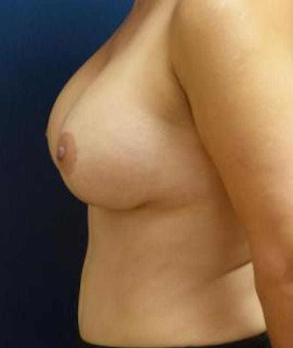 Breast Augmentation Gallery - Patient 4861023 - Image 6