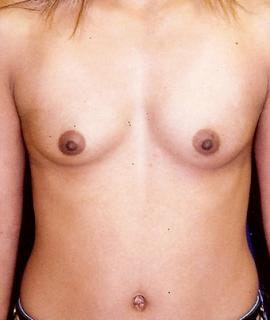 Breast Augmentation Gallery - Patient 4861024 - Image 1