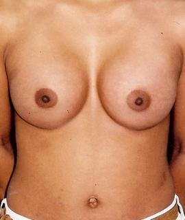 Breast Augmentation Gallery - Patient 4861024 - Image 2