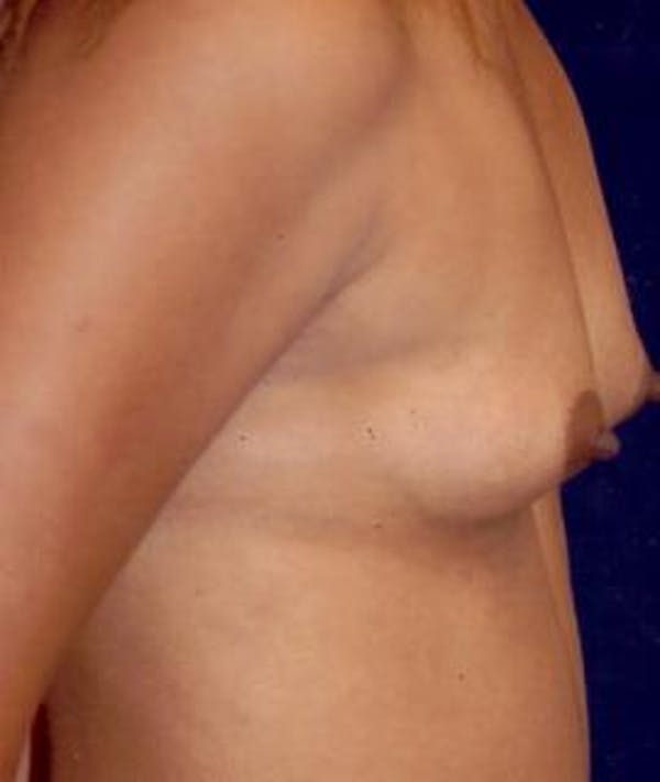 Breast Augmentation Gallery - Patient 4861024 - Image 3