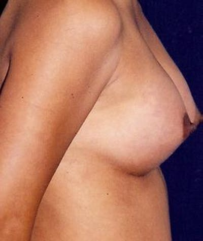 Breast Augmentation Gallery - Patient 4861024 - Image 4