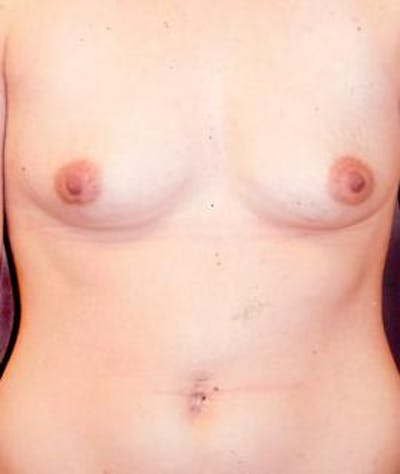 Breast Augmentation Gallery - Patient 4861028 - Image 1
