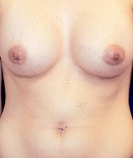 Breast Augmentation Gallery - Patient 4861028 - Image 2