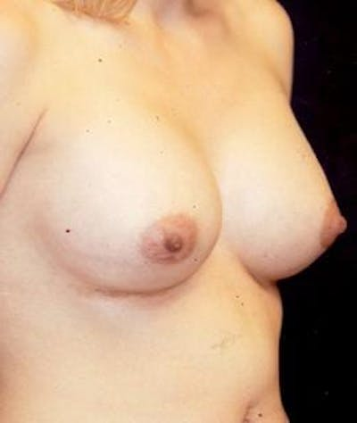 Breast Augmentation Gallery - Patient 4861028 - Image 4