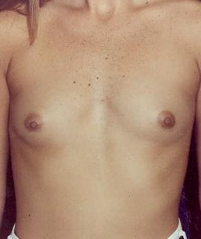 Breast Augmentation Gallery - Patient 4861029 - Image 1
