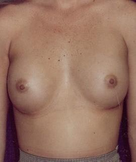 Breast Augmentation Gallery - Patient 4861029 - Image 2