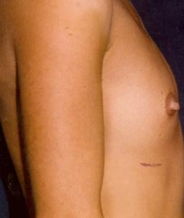 Breast Augmentation Gallery - Patient 4861030 - Image 1