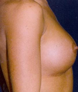 Breast Augmentation Gallery - Patient 4861030 - Image 2