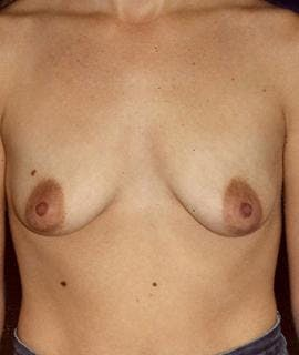 Breast Augmentation Gallery - Patient 4861032 - Image 1