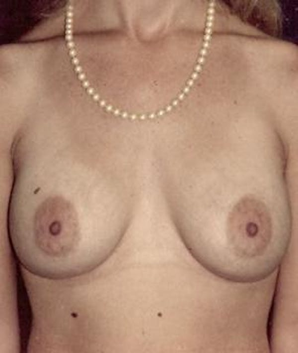 Breast Augmentation Gallery - Patient 4861032 - Image 2