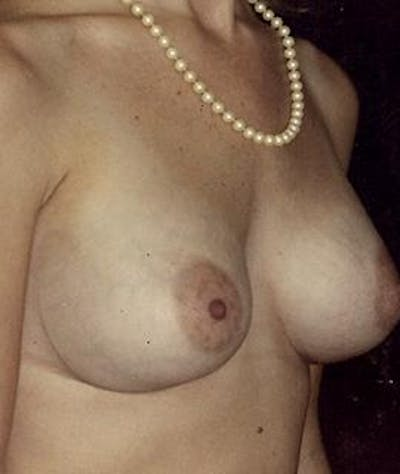 Breast Augmentation Gallery - Patient 4861032 - Image 4
