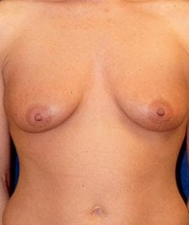 Breast Augmentation Gallery - Patient 4861033 - Image 1