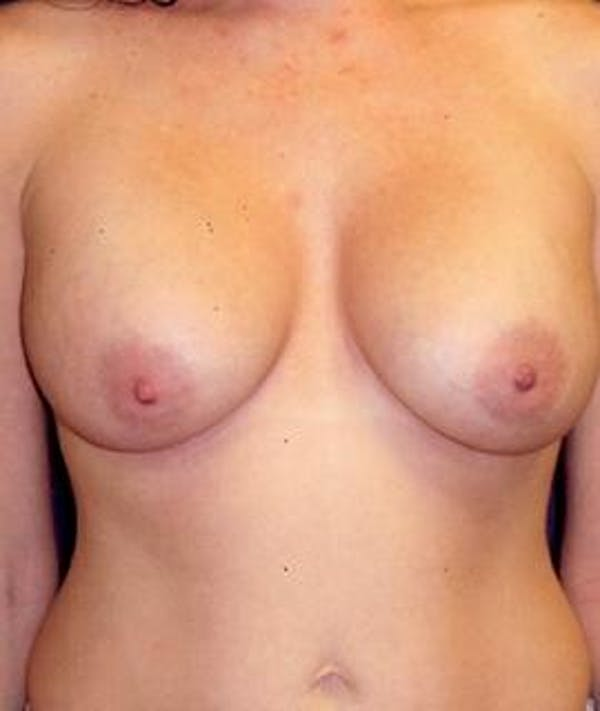 Breast Augmentation Gallery - Patient 4861033 - Image 2