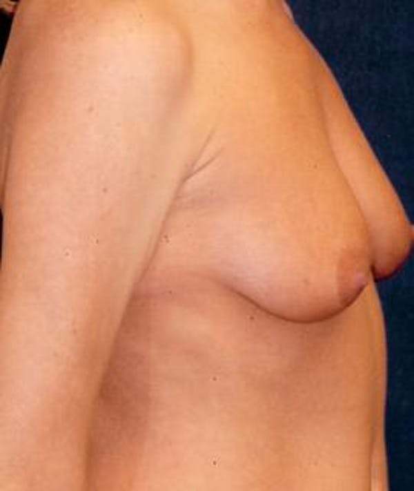Breast Augmentation Gallery - Patient 4861033 - Image 3