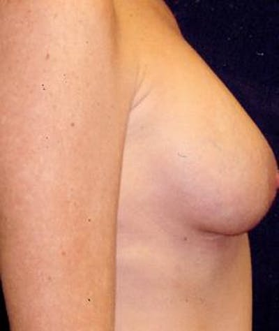 Breast Augmentation Gallery - Patient 4861033 - Image 4