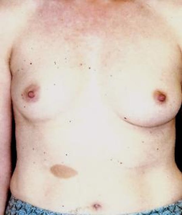 Breast Augmentation Gallery - Patient 4861034 - Image 1