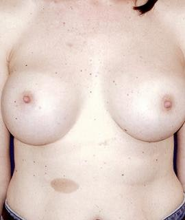 Breast Augmentation Gallery - Patient 4861034 - Image 2