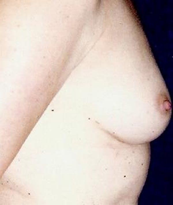Breast Augmentation Gallery - Patient 4861034 - Image 3