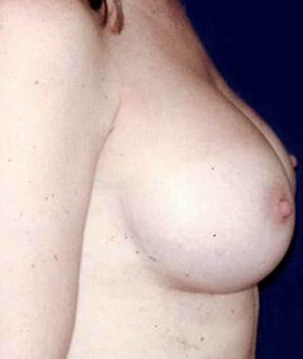 Breast Augmentation Gallery - Patient 4861034 - Image 4