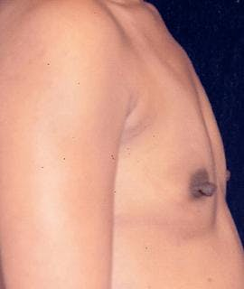 Breast Augmentation Gallery - Patient 4861035 - Image 1