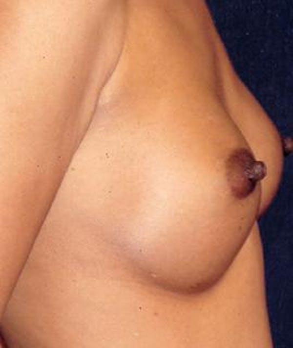Breast Augmentation Gallery - Patient 4861035 - Image 2