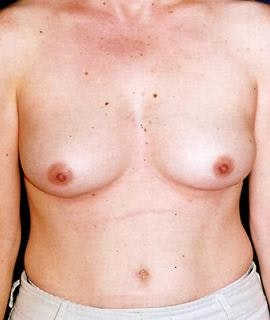 Breast Augmentation Gallery - Patient 4861036 - Image 1