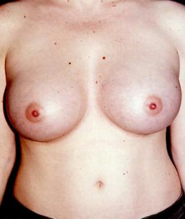 Breast Augmentation Gallery - Patient 4861036 - Image 2