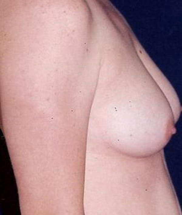 Breast Augmentation Gallery - Patient 4861036 - Image 3
