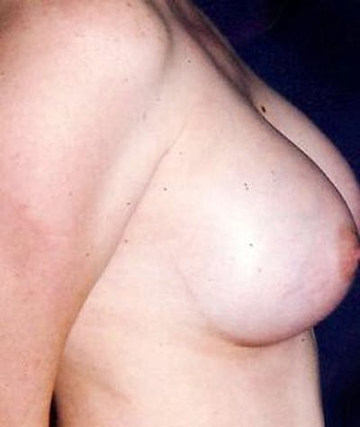 Breast Augmentation Gallery - Patient 4861036 - Image 4