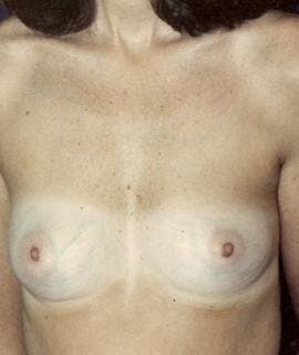 Breast Augmentation Gallery - Patient 4861037 - Image 1