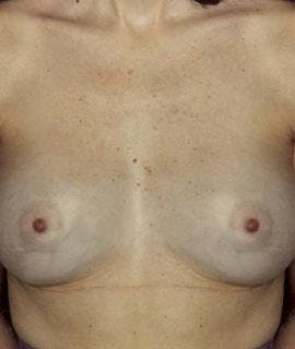 Breast Augmentation Gallery - Patient 4861037 - Image 2