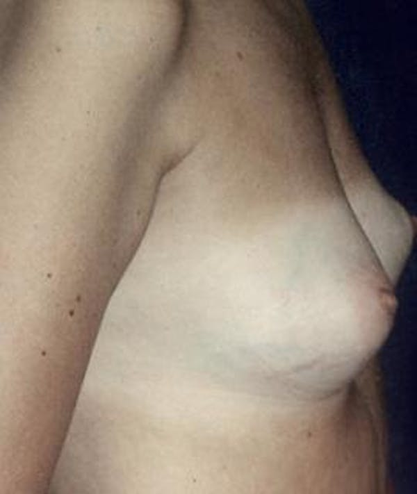 Breast Augmentation Gallery - Patient 4861037 - Image 3