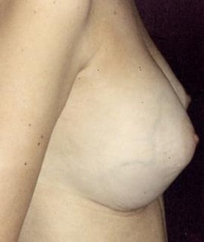 Breast Augmentation Gallery - Patient 4861037 - Image 4