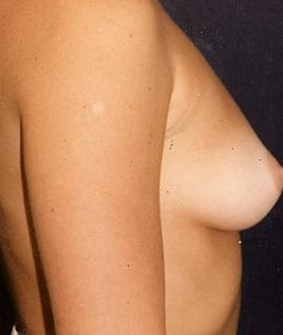 Breast Augmentation Gallery - Patient 4861038 - Image 1