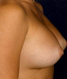 Breast Augmentation Gallery - Patient 4861038 - Image 2