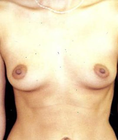 Breast Augmentation Gallery - Patient 4861039 - Image 1