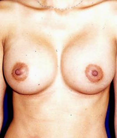 Breast Augmentation Gallery - Patient 4861039 - Image 2