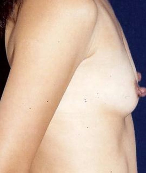 Breast Augmentation Gallery - Patient 4861039 - Image 3