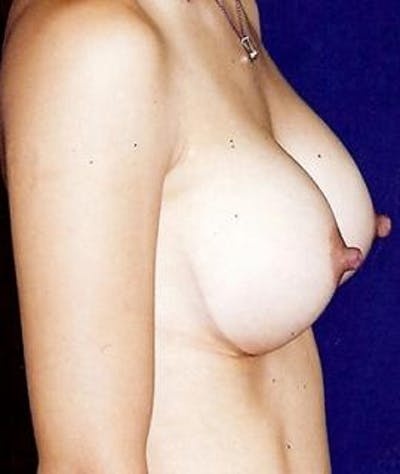 Breast Augmentation Gallery - Patient 4861039 - Image 4
