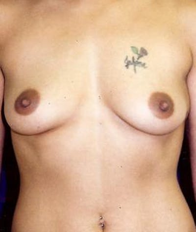 Breast Augmentation Gallery - Patient 4861042 - Image 1