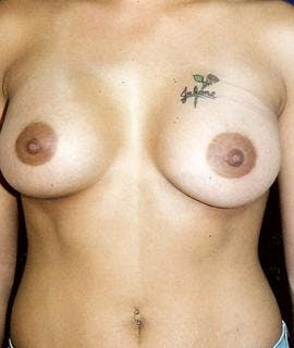 Breast Augmentation Gallery - Patient 4861042 - Image 2