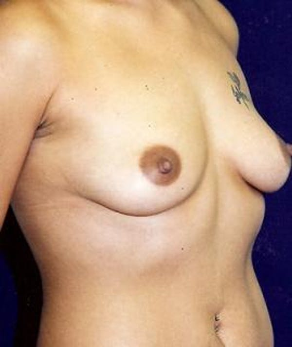 Breast Augmentation Gallery - Patient 4861042 - Image 3