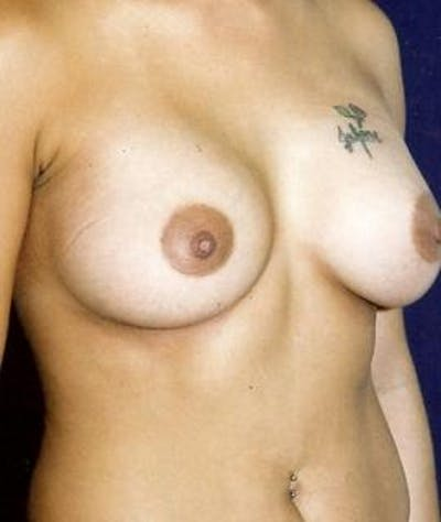 Breast Augmentation Gallery - Patient 4861042 - Image 4