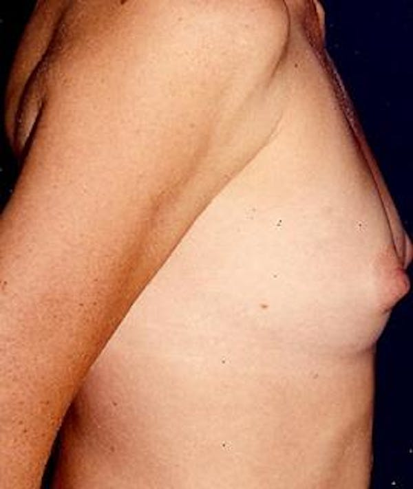 Breast Augmentation Gallery - Patient 4861043 - Image 1