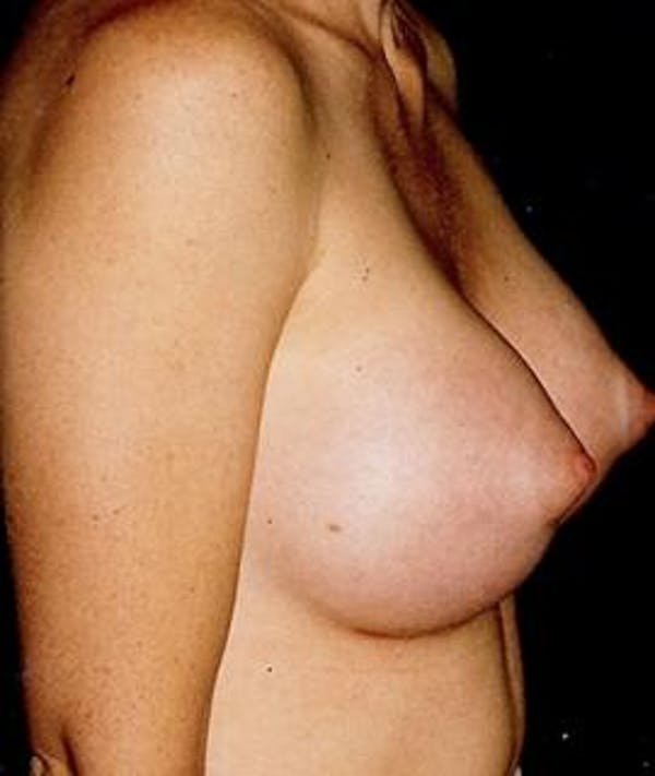 Breast Augmentation Gallery - Patient 4861043 - Image 2
