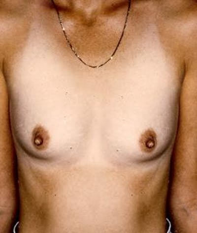 Breast Augmentation Gallery - Patient 4861044 - Image 1