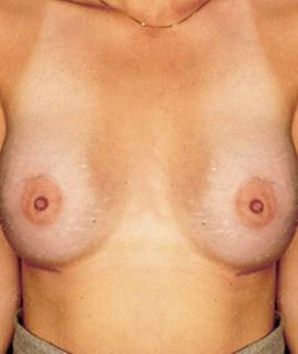 Breast Augmentation Gallery - Patient 4861044 - Image 2