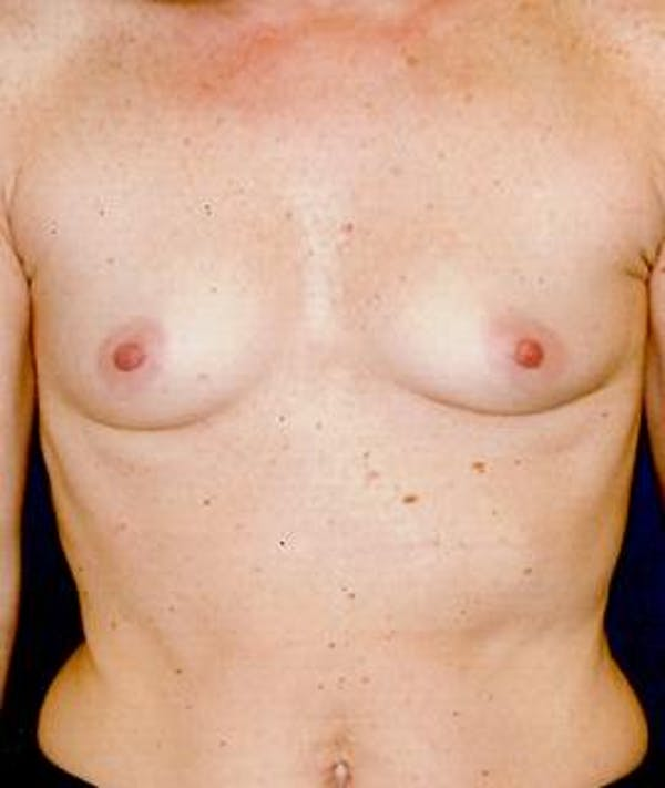 Breast Augmentation Gallery - Patient 4861045 - Image 1